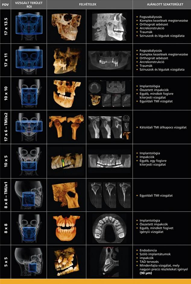Fix A Dent >> Dent-East Kft. - Carestream termékek